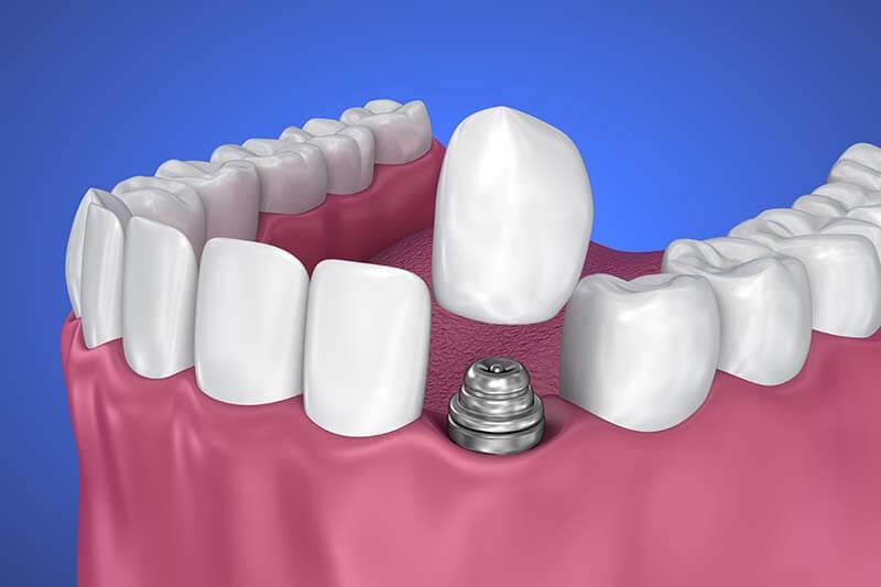 Dental Crown Implants Webster New York