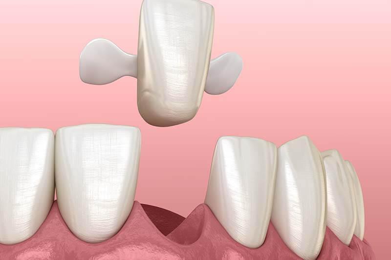 Dental Bridges in Webster NY
