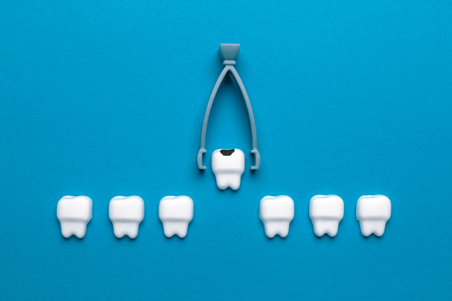 What to Expect Before, During, and After Your Tooth Extraction