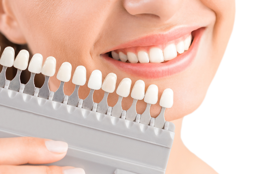 Why Professional Tooth Whitening in Webster Provides Better Results than Over-The-Counter Whitening Products