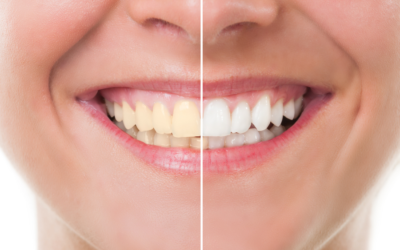 Natural Tooth Whitening – Fact or Fiction?