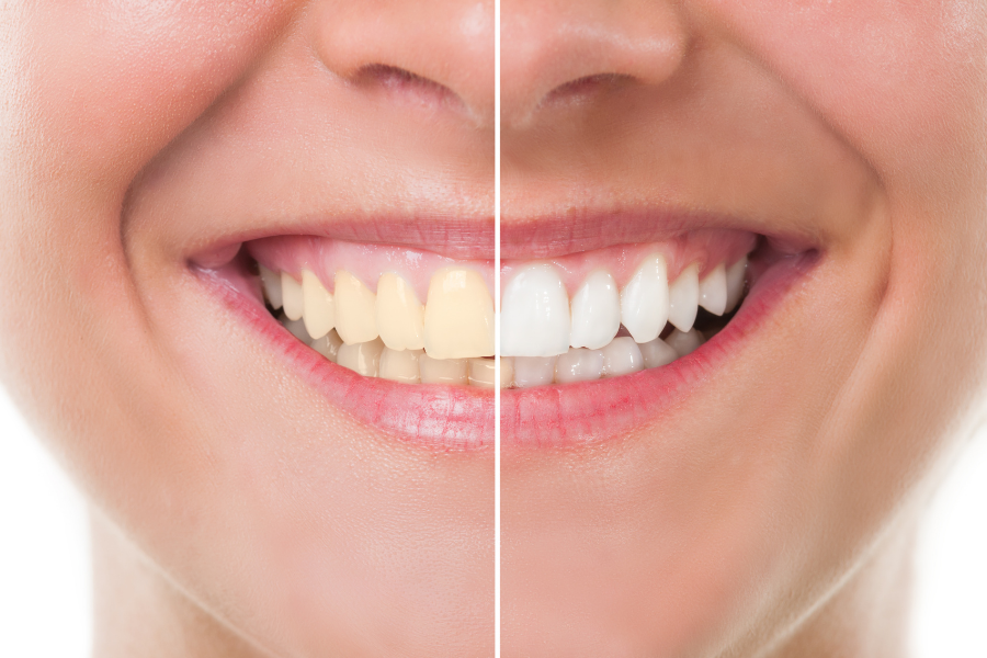 Natural Tooth Whitening - Fact or Fiction